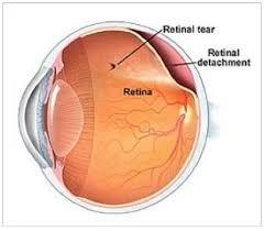 Cross section of eye showing retinal detachment