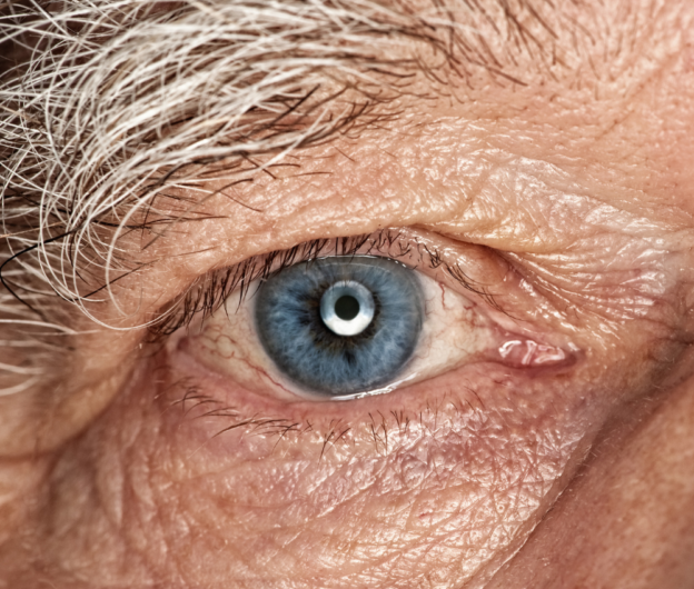 Old person eye