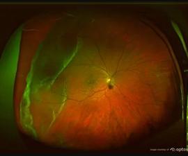 Retinal Tear Optomap